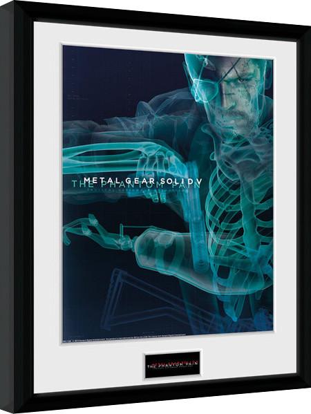 Posters Metal Gear Solid V - X-Ray zarámovaný plakát